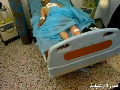 مستشفى الكفرة يستقبل حالتين بالرغم من الهدنة المتفق عليها