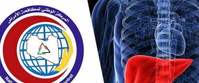 """مركز مكافحة الأمراض يؤكد انتشار التهاب الكبد""""أ"""" بالمدارس"""