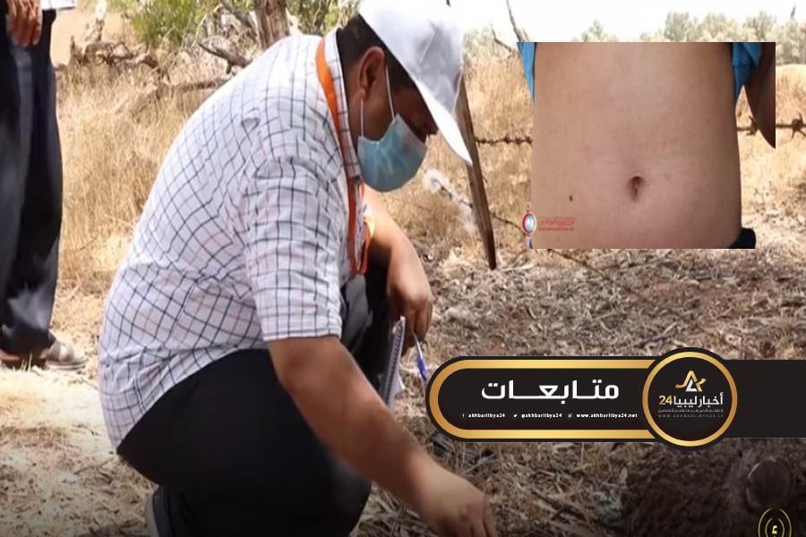 """صورة بعد سيطرة الوفاق.. انتشار بكتيريا """"ريكتسيا"""" في ترهونة"""